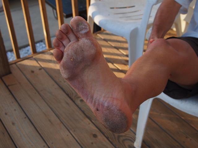 Sock Doc Barefoot Run