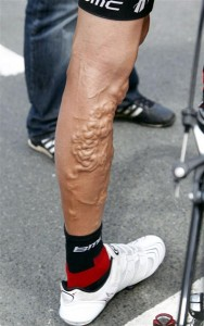 Varicose Veins – Like a Pack of Worms Under the Skin