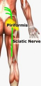 Sock Doc: Natural Treatment & Prevention of Piriformis Syndrome, Low Back Pain, & Sciatica