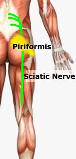 f5015f1f65 Back Pain | Sciatica | Hip Pain | Natural Treatment & Back Pain Prevention